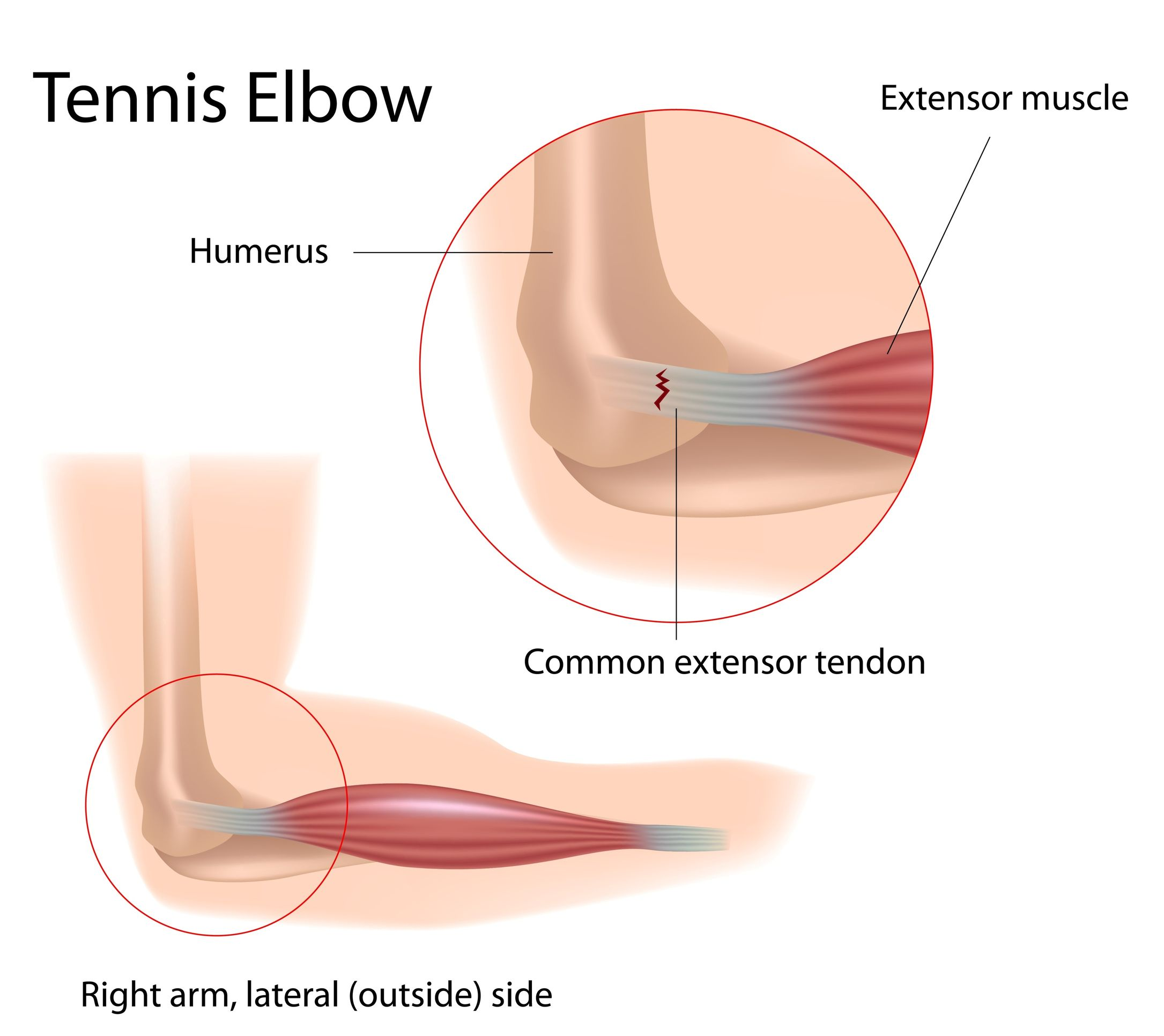tennis elbow - definition, anatomy and causes - jeffrey h. berg, m.d.