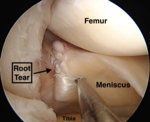 Root Tears